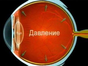 Интоксикация зрительной системы