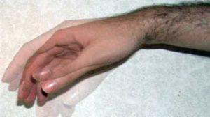 Тремор возникает при галлюцинозе с делирием
