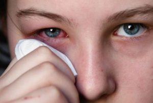 Одним из симптомов является раздражение слизистой глаз