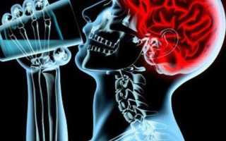 Вред употребления алкоголя при сотрясении мозга
