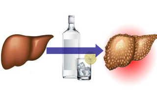 Признаки развития алкогольного гепатита и способы лечения