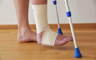 Можно ли пить крепкий алкоголь при различных переломах ноги?