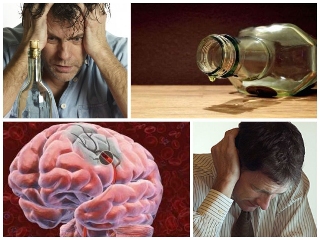 Энцефалопатия у алкоголиков