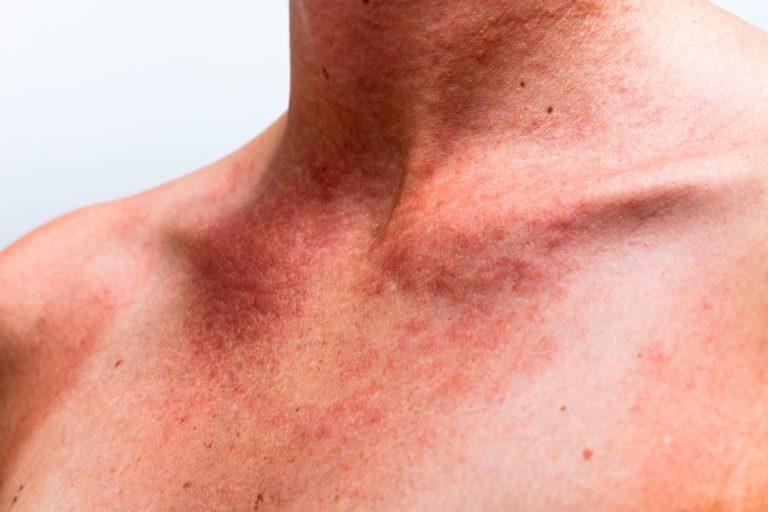 Аллергия на алкоголь – симптомы и как лечить