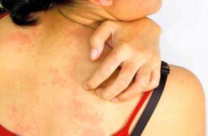 Аллергическая реакция на входящие в состав препарата вещества также является противопоказанием