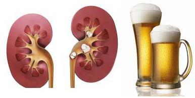 Как влияет алкоголь на почки