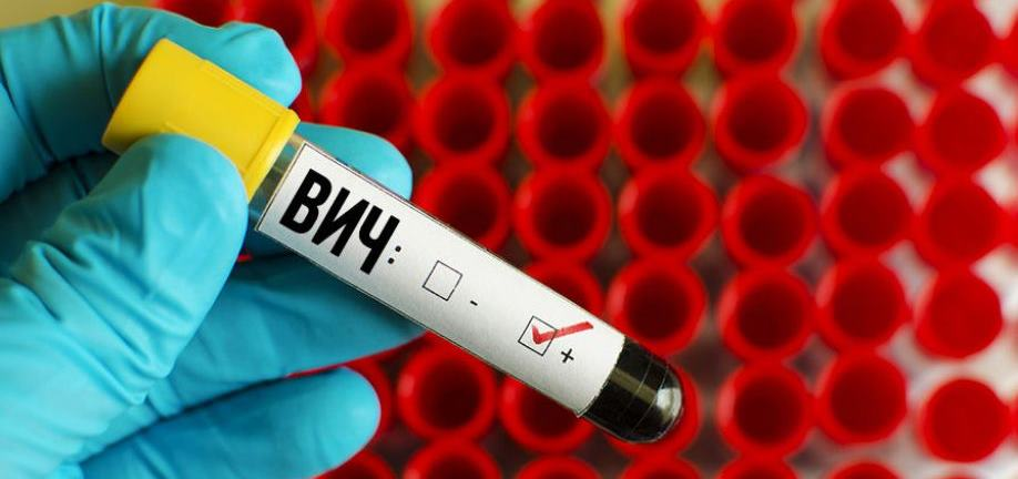ВИЧ-терапия